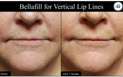 New Solution for Wrinkles around the Mouth