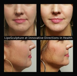 Slim Your Chin – Removing Extra Fat