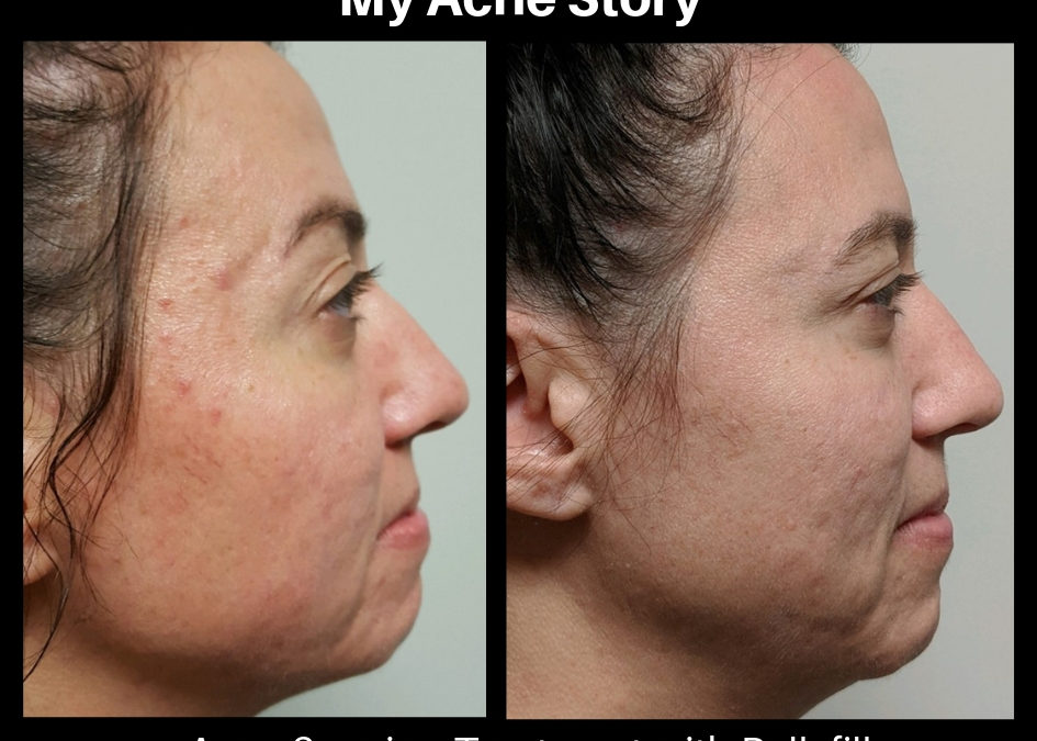 My Acne Story: How the scarring has affected me and treatment has changed my life.