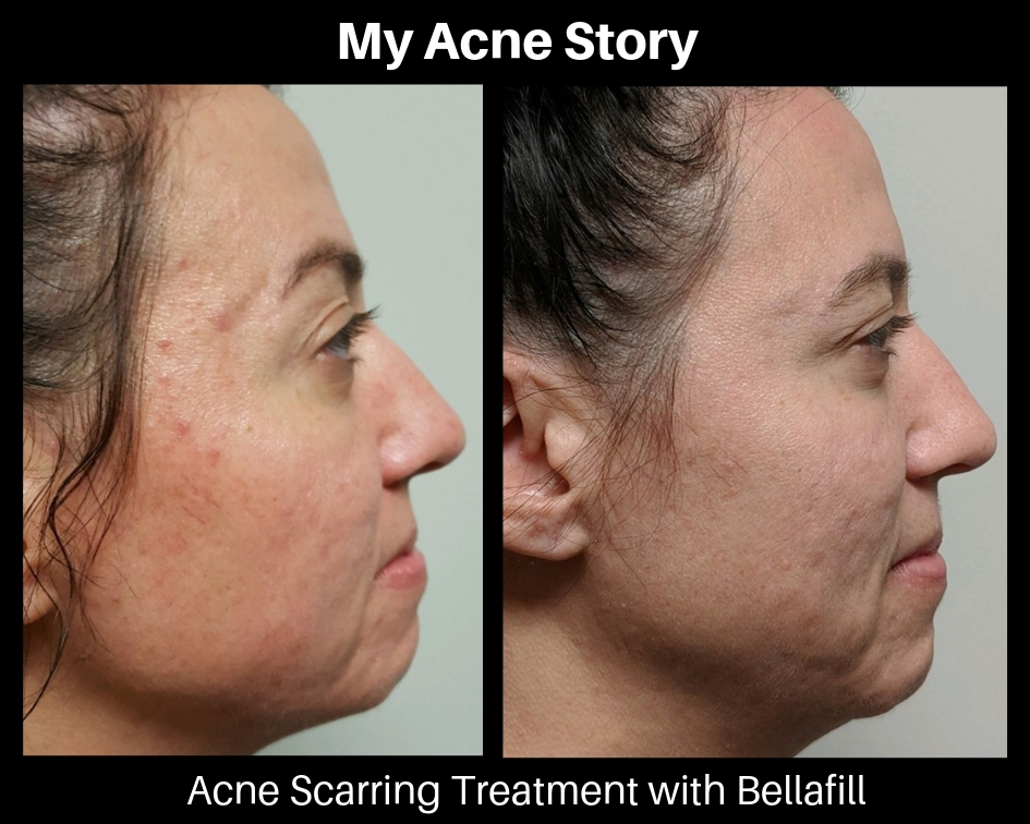 My Acne Story: How the scarring has affected me and treatment has changed my  life. | Innovative Directions in Health |